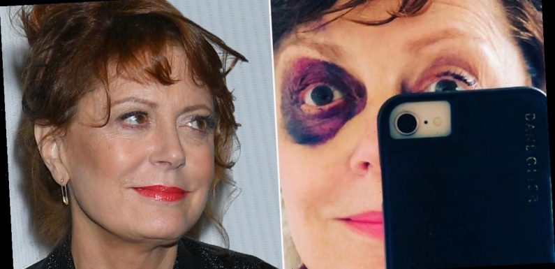 US actress Susan Sarandon sports black eye and fractured nose after horror fall