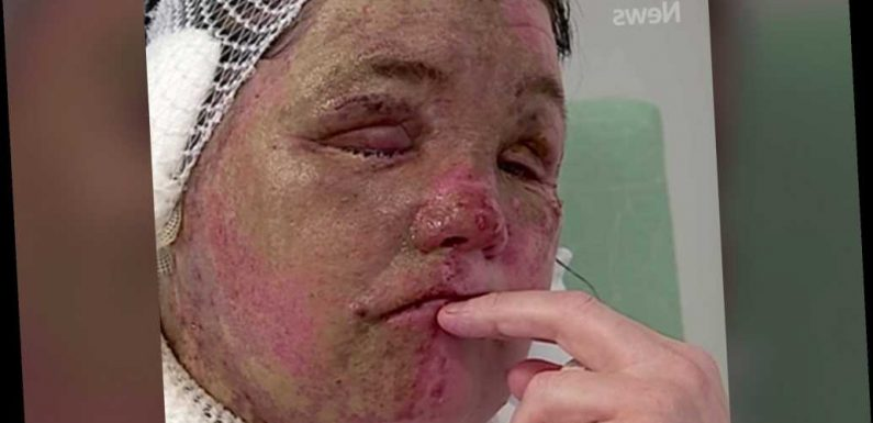 Woman disfigured by acid attack still can't look in mirrors