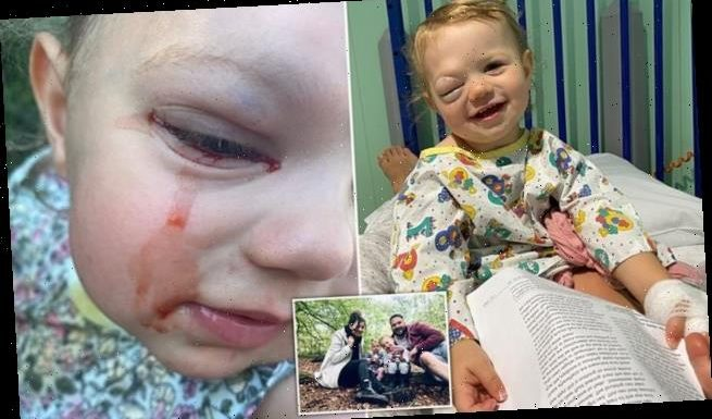 Little girl cries tears of blood due to rare cyst behind her eye